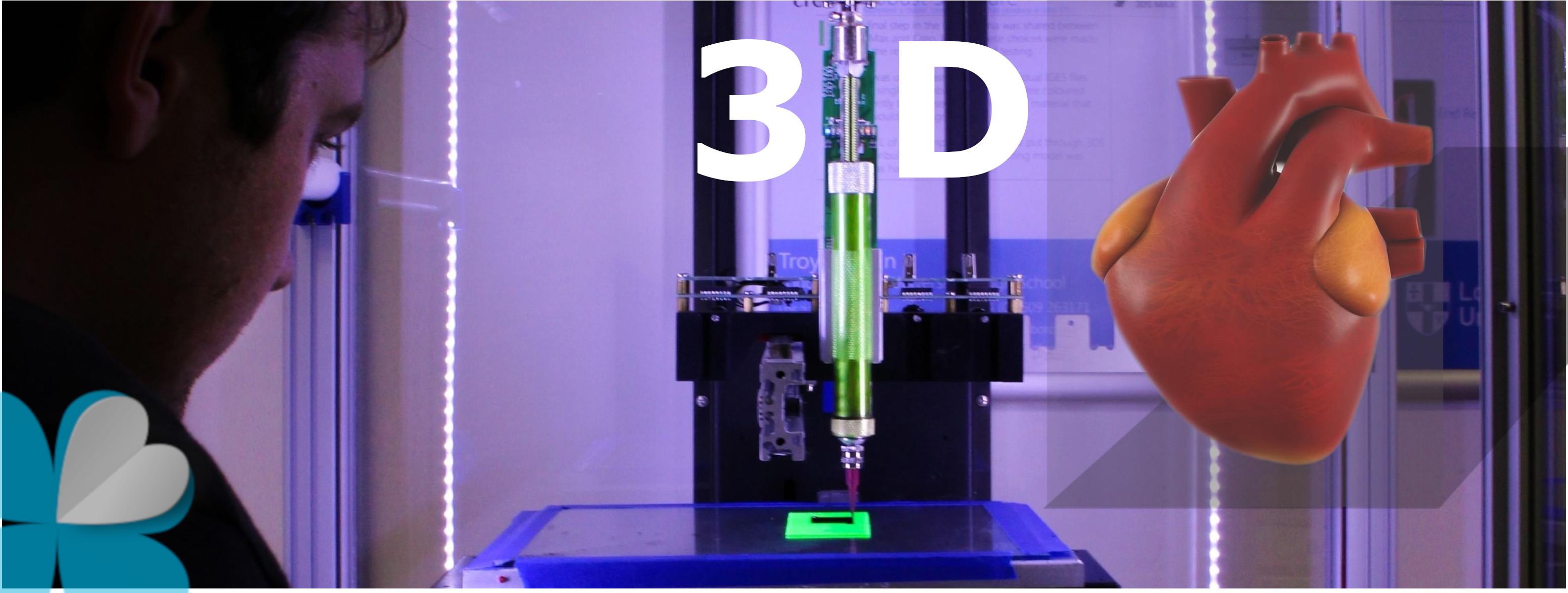 La impresión 3D salva vidas